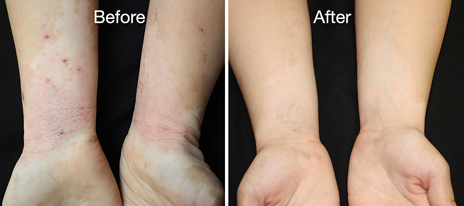 Forearms of eczema patient before and after treatment with arthritis medication. (Photos by Dr. Brett King)
