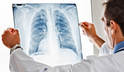 Doctor looking at x-ray of lungs.