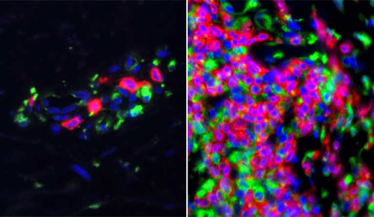 Skin samples from lupus patients show heightened activity in immune system genes