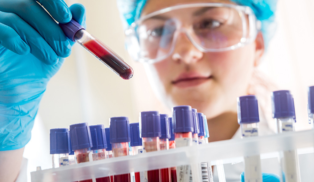 Woman scientist looking at a blood sample in the lab