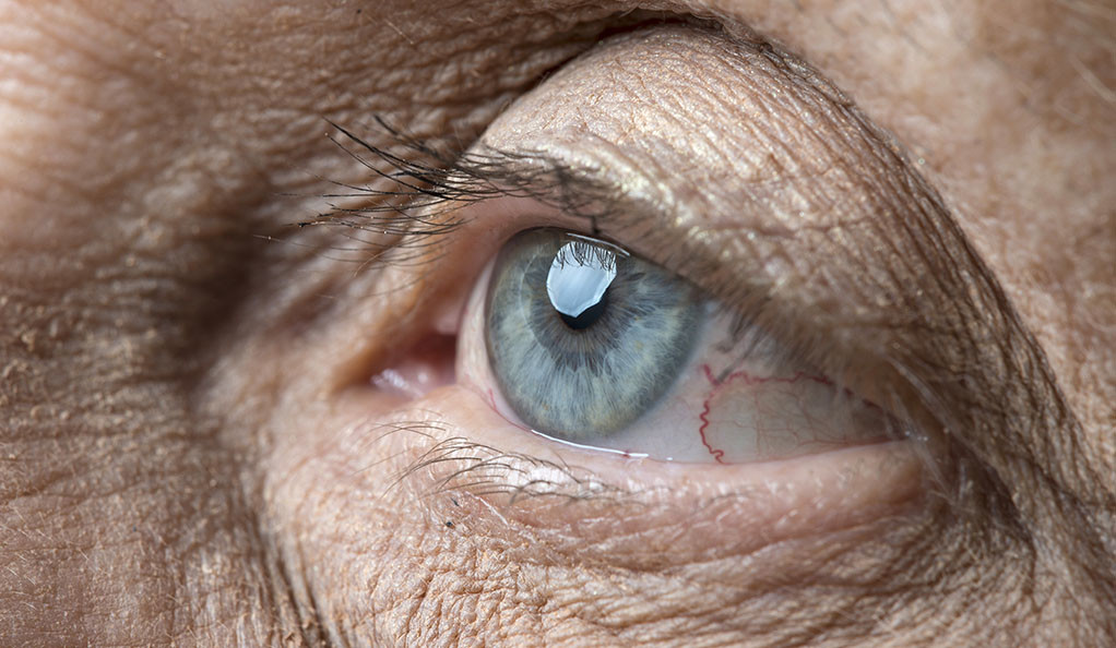 A closeup of an elderly person's eye