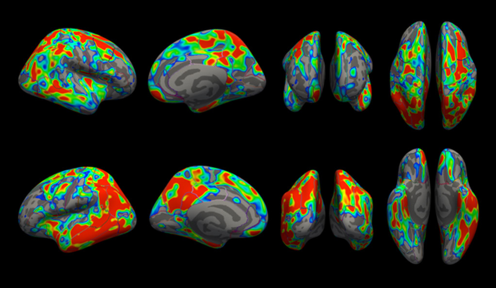 New Imaging Tools - Shaping Up for Early Alzheimers