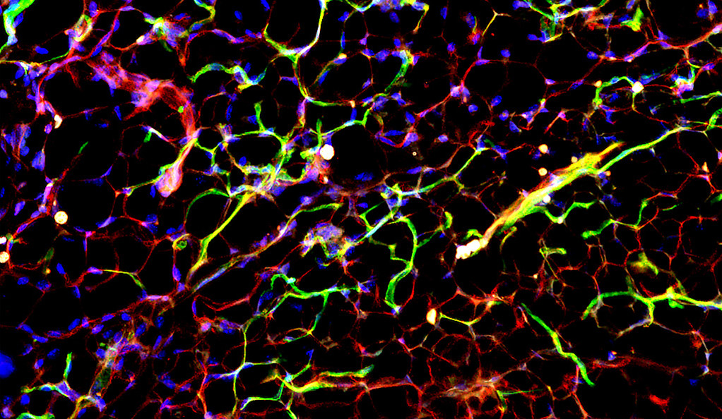 Restricted expression of apelin receptor (green) to the endothelial cells (red) in adipose tissue.
