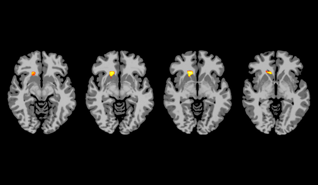 Four brain scans with different regions of the brain highlighted.