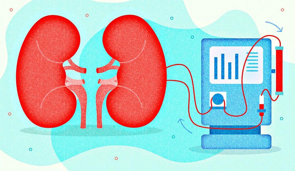 Kidney dialysis illustration