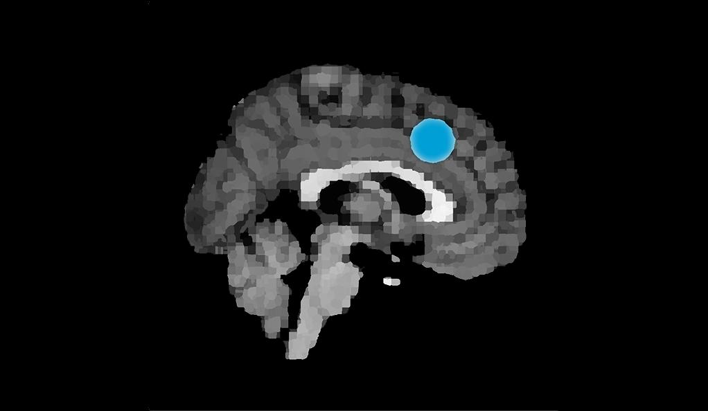 MRI image highlighting the dorsomedial prefrontal cortex in the brain.