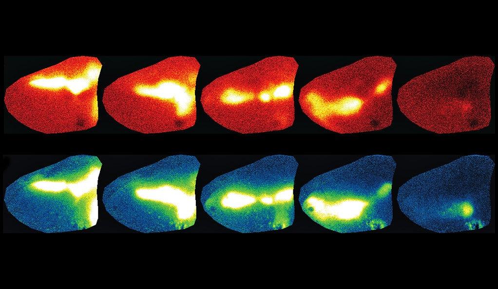superior colliculus and primary visual cortex diagram