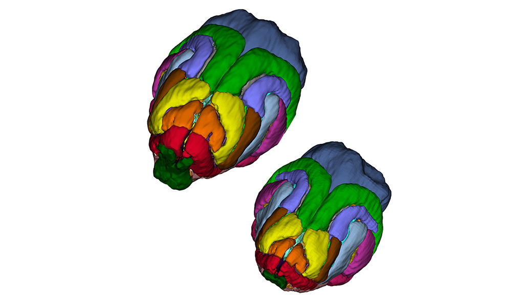 Comparison of two ferret brain scans.