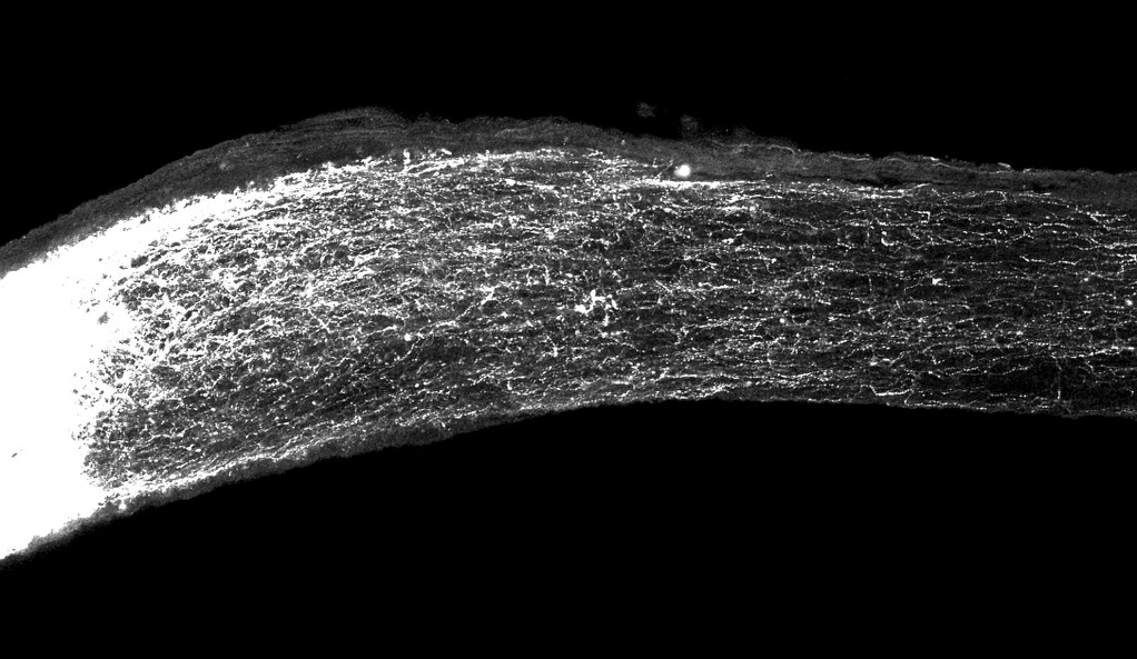 Regeneration of axons can be seen in this image from the study, depicting a mouse's optic nerve.