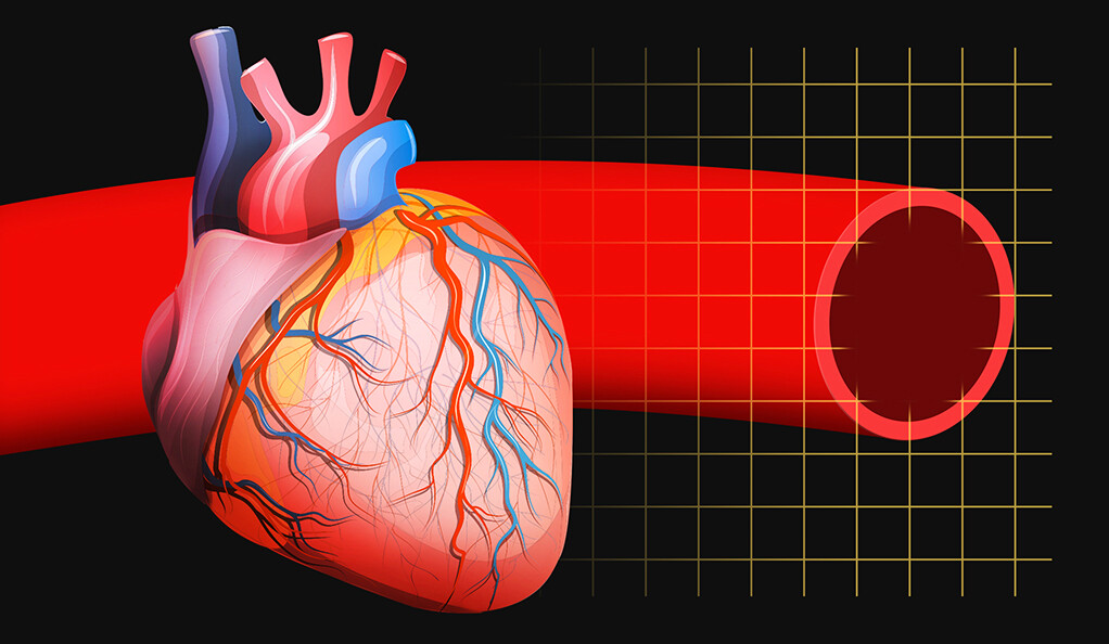 Diagram of a human heart with blood vessel detail