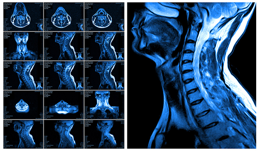 do patients with neck injuries really need that mri after a normal