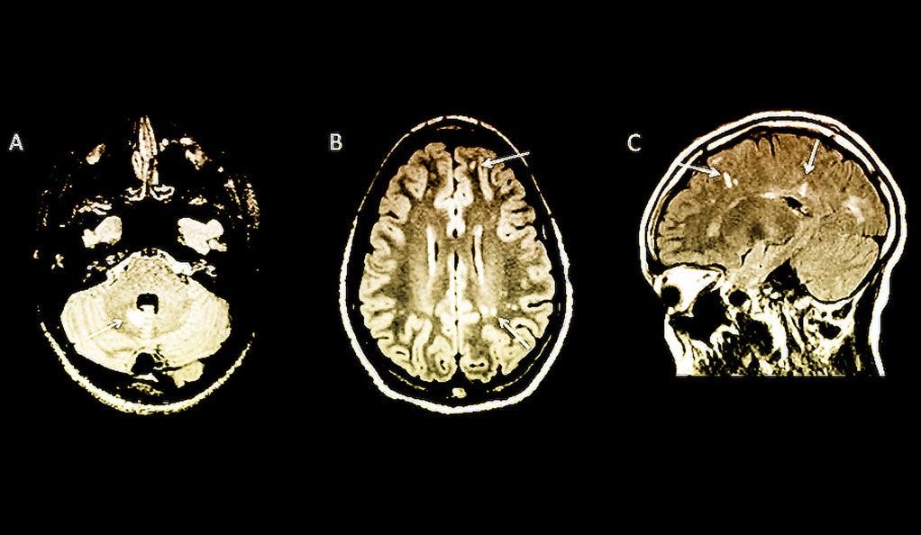 Three MRI scans of the human brain.