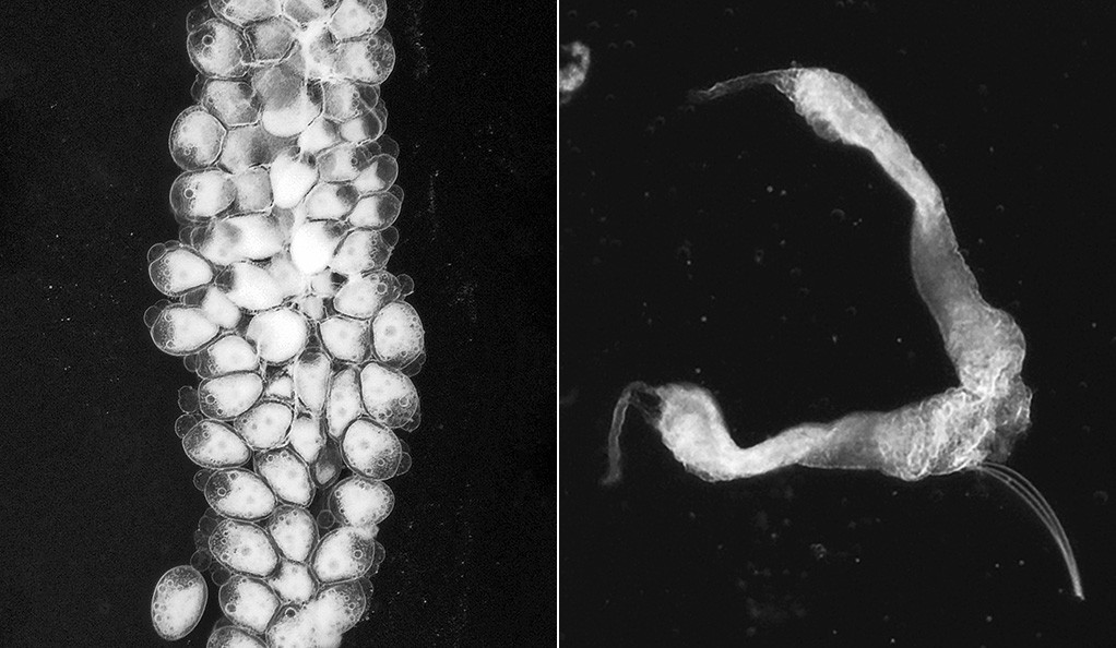 Mosquito ovaries before (left) and after Yale researchers removed a single gene from the female mosquito genome