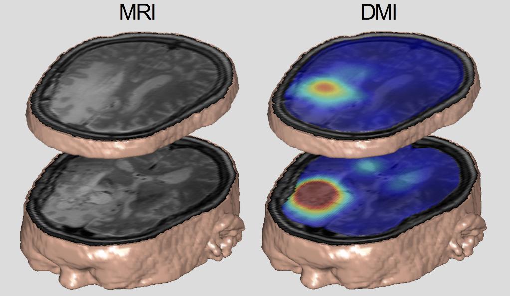 Standard MRI vs DMI comaprisson