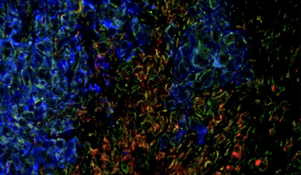 Shown are metastatic tumor cells (blue) with neuroinflammatory cells (green and red) in the brain.
