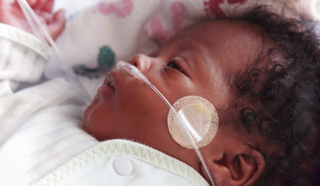 A premature infant with a breathing tube