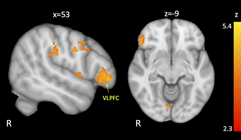 Brain scans of children with autism illustration the regions of the brain with reduced connectivity to the amygdala