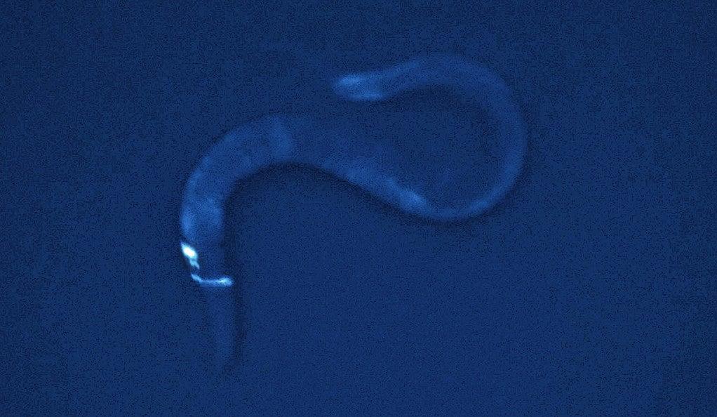 A single brain neuron of the worm C. elegans.