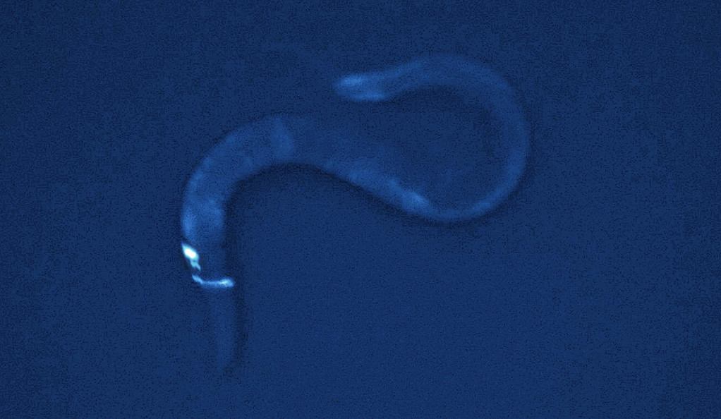 A single brain neuron of the worm C. elegans.