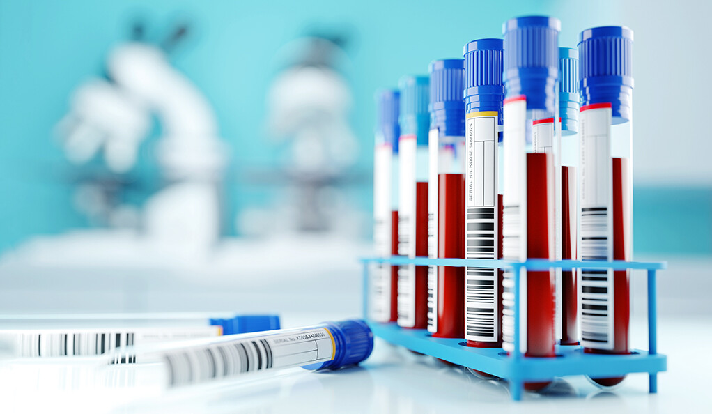 Blood samples in a lab setting