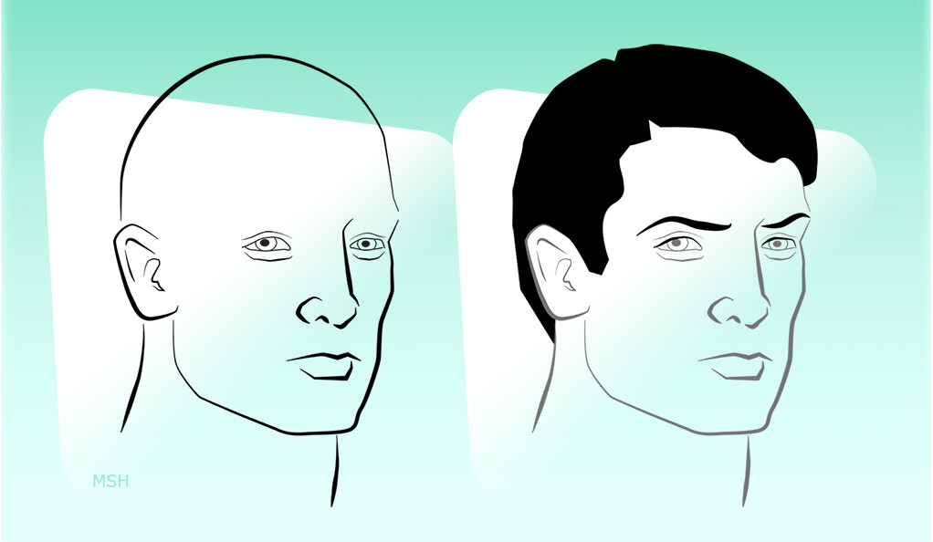Two illustrations of the same man, with and without hair.