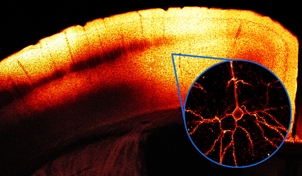 Red voltage indicator VARNAM expressed in the motor cortex of a mouse brain.