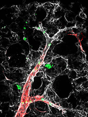 Specialized immune system cells around tiny arteries in lungs of mice with pulmonary hypertension.