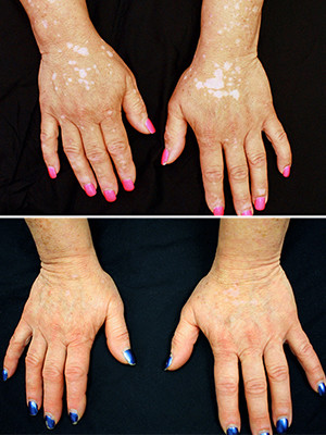 A before and after comparison of a vitiligo patient's hands and the effects of treatment with tofacitinib.