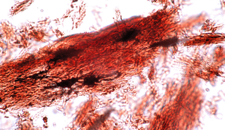 Microscopic image of decalcified YPM Allosaurus bone
