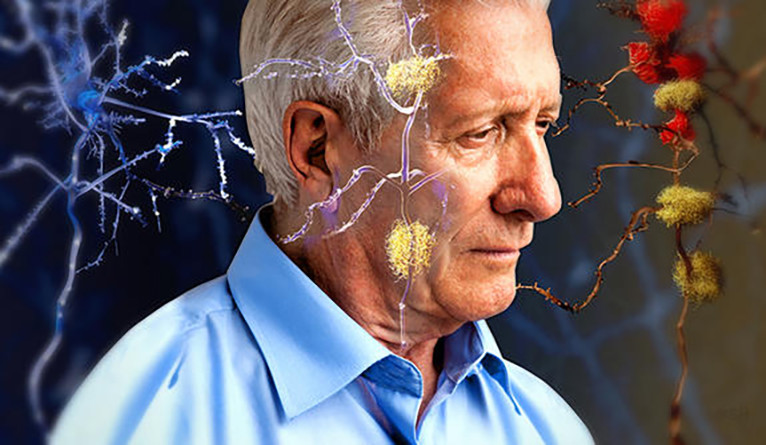 An elderly man with a confused look, surrounded by images of the neurobiology of the brain.