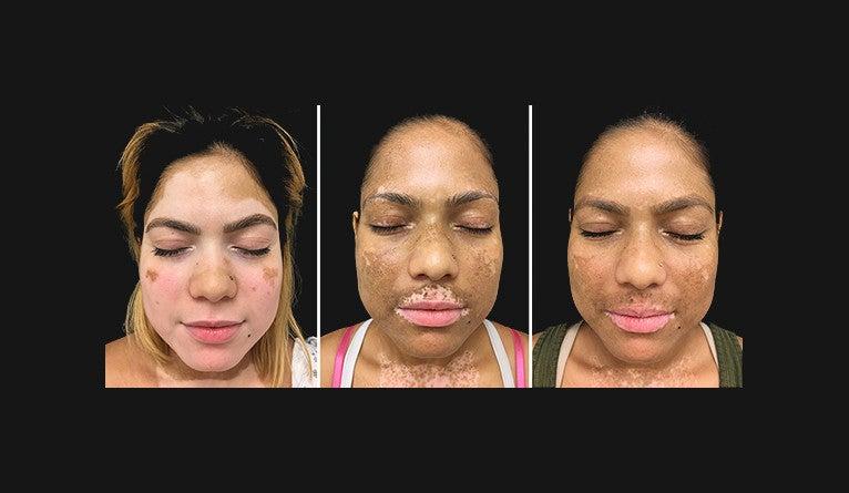 A trio of photos of a vitiligo patient over the course of tofacitinib treatment.