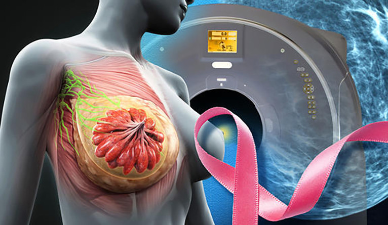 Medical illustration of breast tissue with pink cancer ribbon and MRI machine.