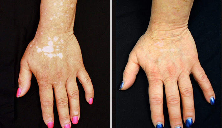 Side by side comparison of a vitiligo patient's left and before and after treatment with an arthritis medication.