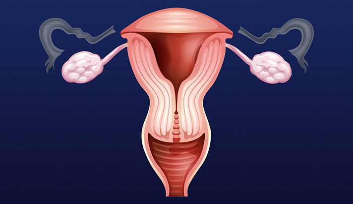 Removing Fallopian Tubes But Keeping Ovaries May Cut Cancer Risk But Few Have Procedure Yalenews