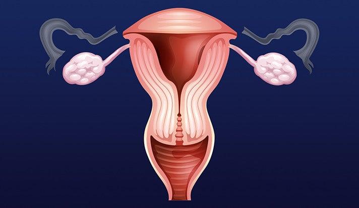 Removing Fallopian Tubes But Keeping Ovaries May Cut Cancer Risk