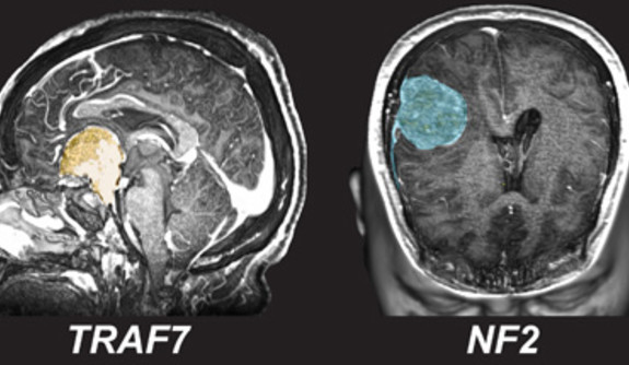 Genetic landscape of common brain tumors holds key to personalized ...