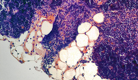 Aging thymus with fatty degeneration.