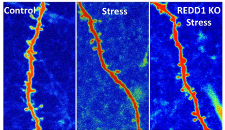 SDynaptic connections between brain cells before and after ketamine treatment.