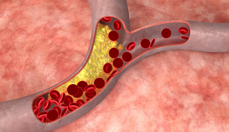 Illustration depicting plaque in arteries.