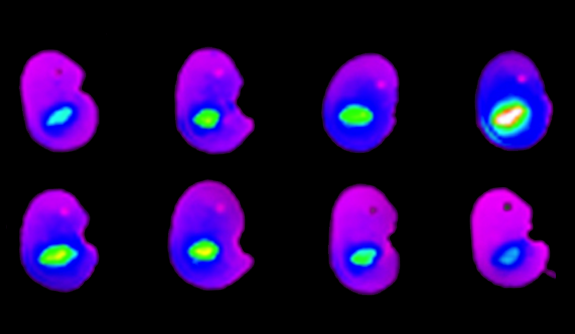 Distribution of nanoparticles in a litter of fetal mice after intravenous nanoparticle treatment.