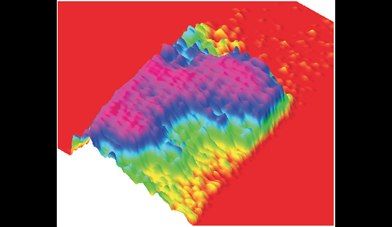 Topological map of a toxic pore formed by hundreds of copies of the hormone IAPP.