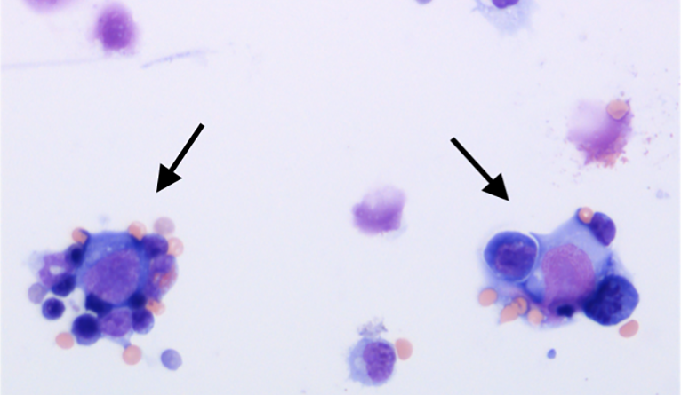 Image shows signs of a lethal complication, hemophagocytosis, in the bone marrow after sequential inflammatory challenge.