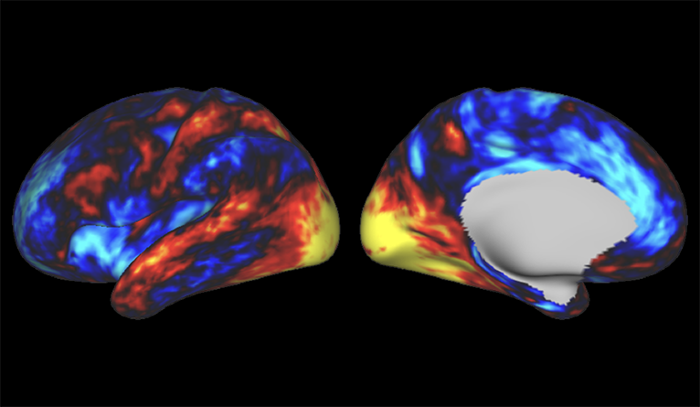 Brain scans showing increased communication between areas involved in sensation and movement after taking LSD.