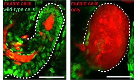 Graphic represenation of tumor cells.