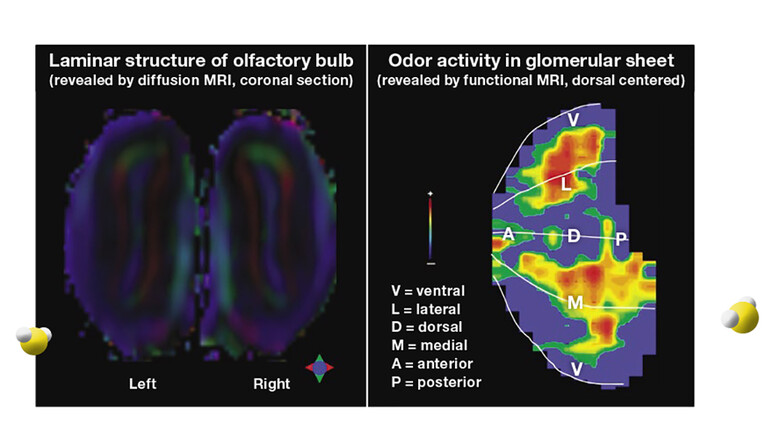 Brain MRI, with portioned highlighted to indicate olfactory activity.