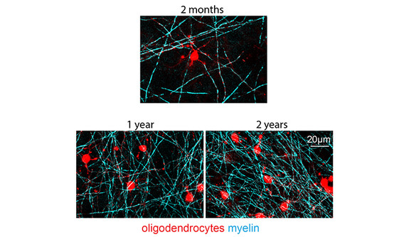 Diagram illustrating the formation of myelin in the brain over the course of 2 months, 1 year, and 2 years.