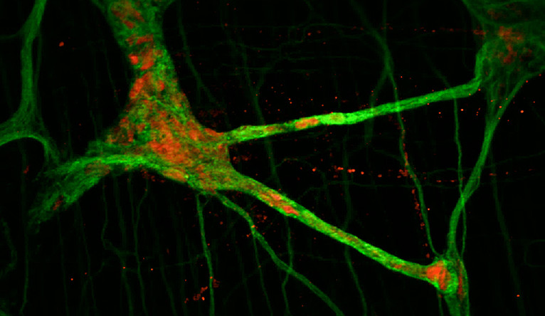 Image of the neuron network in the intestine