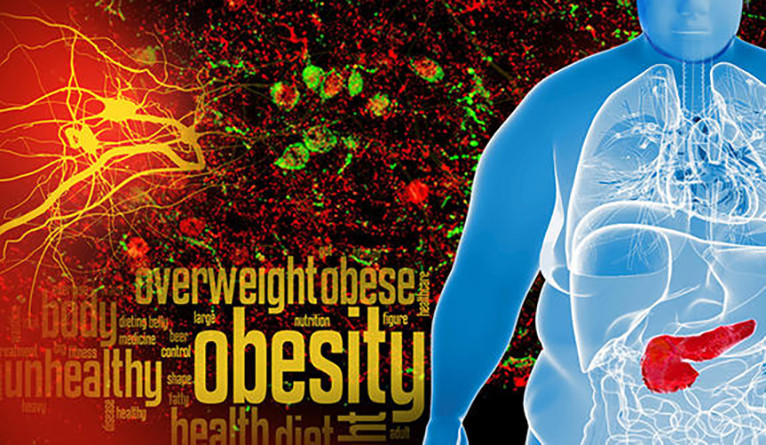 A collage combining words and images associated with obesity.