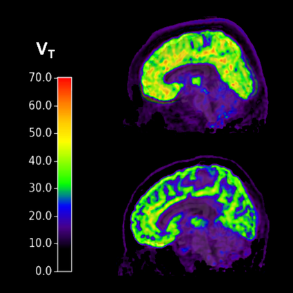Brains of individuals with PTSD and suicidal thoughts (top) show higher levels of mGluR5 compared to healthy controls (bottom).