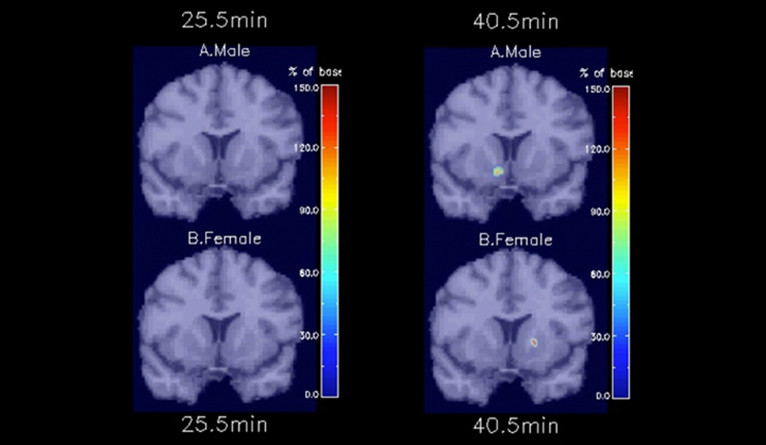 Brain imaging of differences between male and female brains when smoking.
